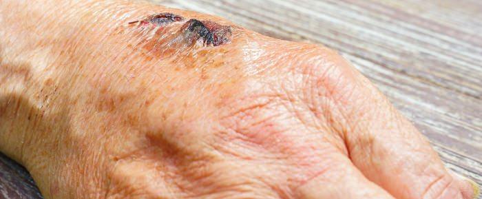 Anwendung gegen offene Wunden auf der Haut zur Unterstützung der Wundheilung.